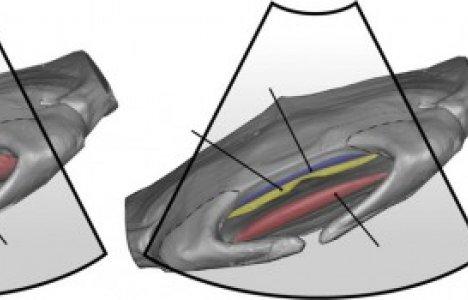 CT-bild av manta embryo som visar hur ungen pumpar med magen. Bild: Tomita et al